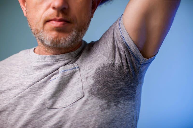 De jonge mens met zweet onder de oksel en heeft een vuile geur Gezondheid en geneeskundeconcept stock foto's