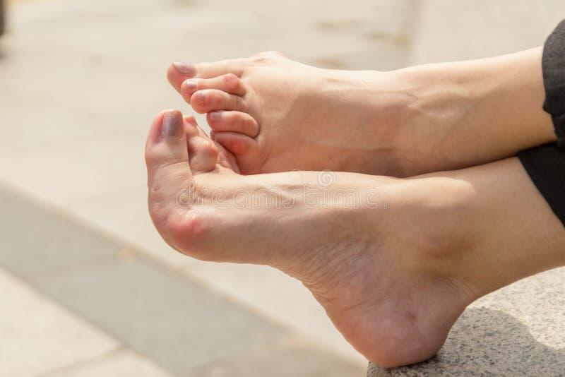 De jonge vrouw die reumatoïde artritis hebben neemt een rust zitting op een bank bij een park De handen en de benen zijn misvormd stock fotografie