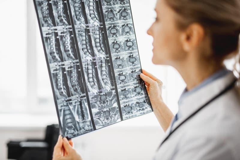 De jonge vrouwelijke arts analyseert radiografieresultaten stock foto's