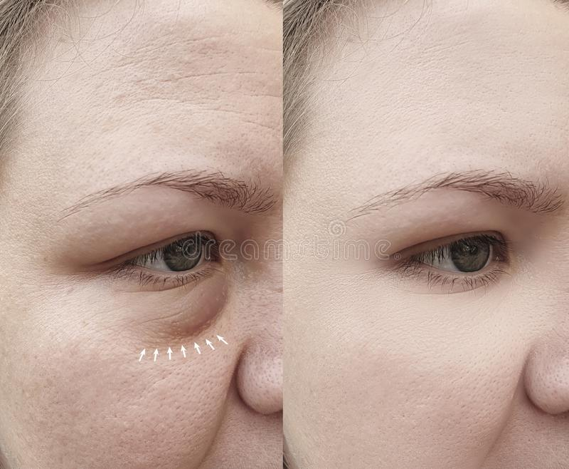 De Kaukasische rimpels van het meisjesgezicht na verwijdering stock afbeeldingen