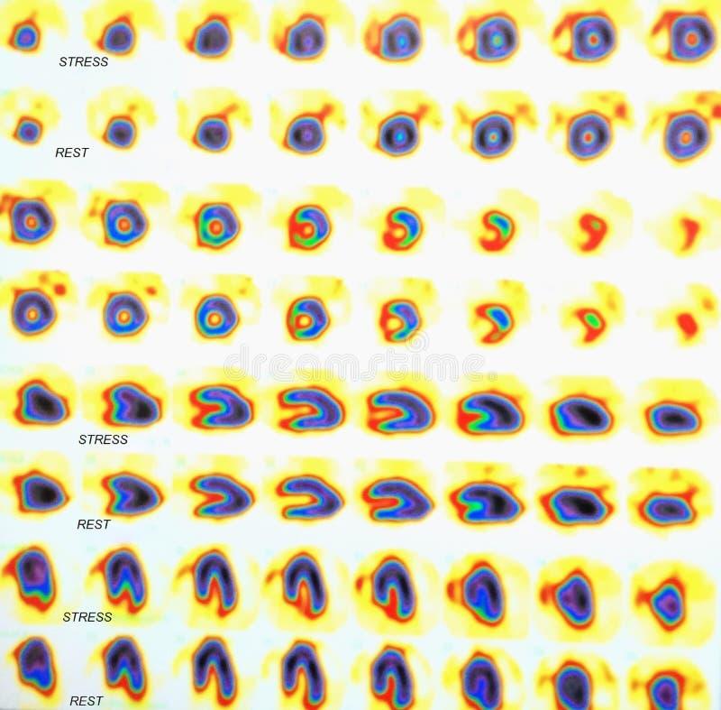 De kern myocardiale test van de perfusiespanning royalty-vrije stock fotografie