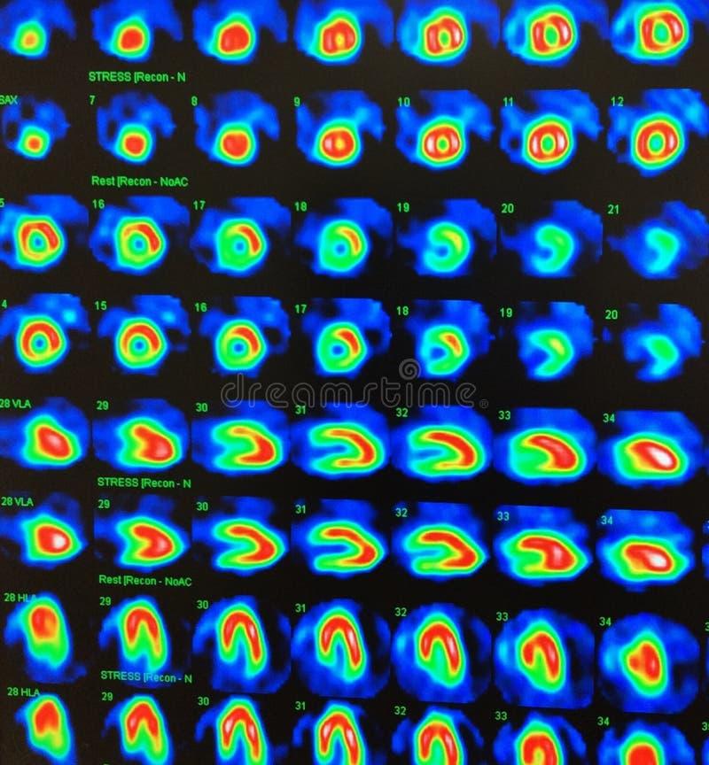 De kern myocardiale test van de perfusiespanning royalty-vrije stock foto's