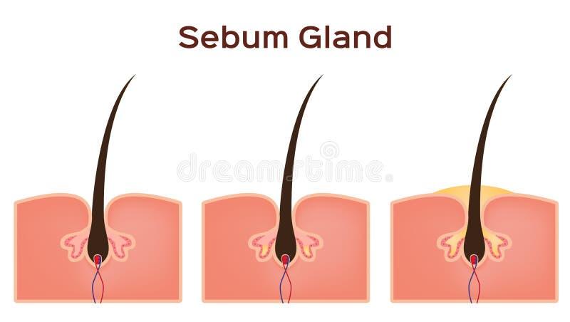 De klier van de vetafscheidingsolie in menselijke huid stock illustratie