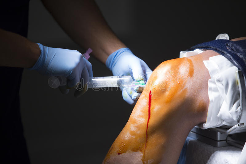 De knie arthroscopy verdovingsmiddel van de orthopediechirurgie royalty-vrije stock foto's