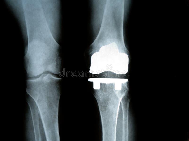 De Knie van het titanium stock afbeelding