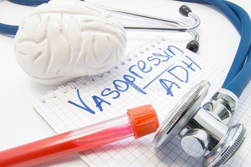 De laboratoriumreageerbuis met de hersenen van de bloedstethoscoop ligt dichtbij nota geëtiketteerd hormoon Vasopressin of antidi royalty-vrije stock fotografie