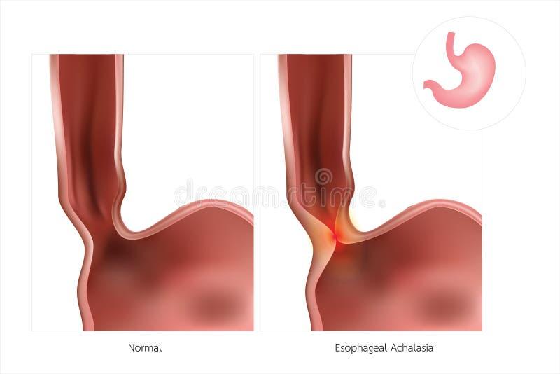 De maag of de slokdarm worden vaak bedoeld als eenvoudige Achalasia De lagere esophageal sfincter ontspant niet, het veroorzaken stock illustratie