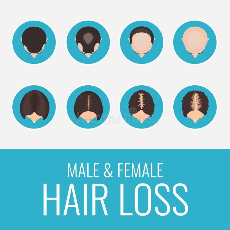 De mannelijke en vrouwelijke reeks van het haarverlies royalty-vrije illustratie