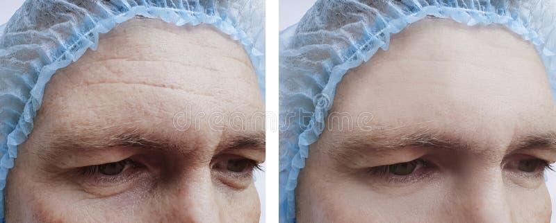 De mannelijke voorhoofdcorrectie rimpelt before and after behandeling stock foto's