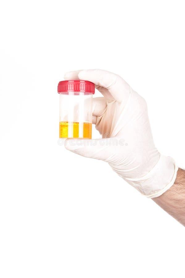 De medische fles van de specimeninzameling royalty-vrije stock afbeelding