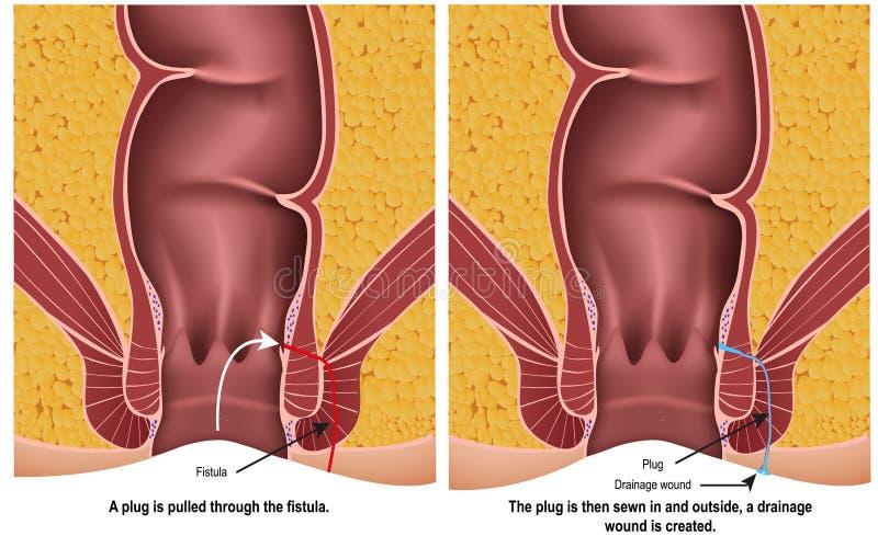 De medische illustratie van de fistelstop op witte achtergrond met beschrijving vector illustratie