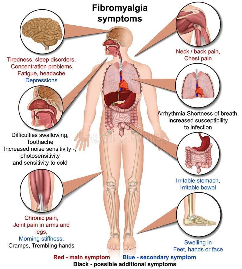 De medische vectordieillustratie van Fibromyalgiasymptomen op witte infographic achtergrond wordt geïsoleerd royalty-vrije illustratie