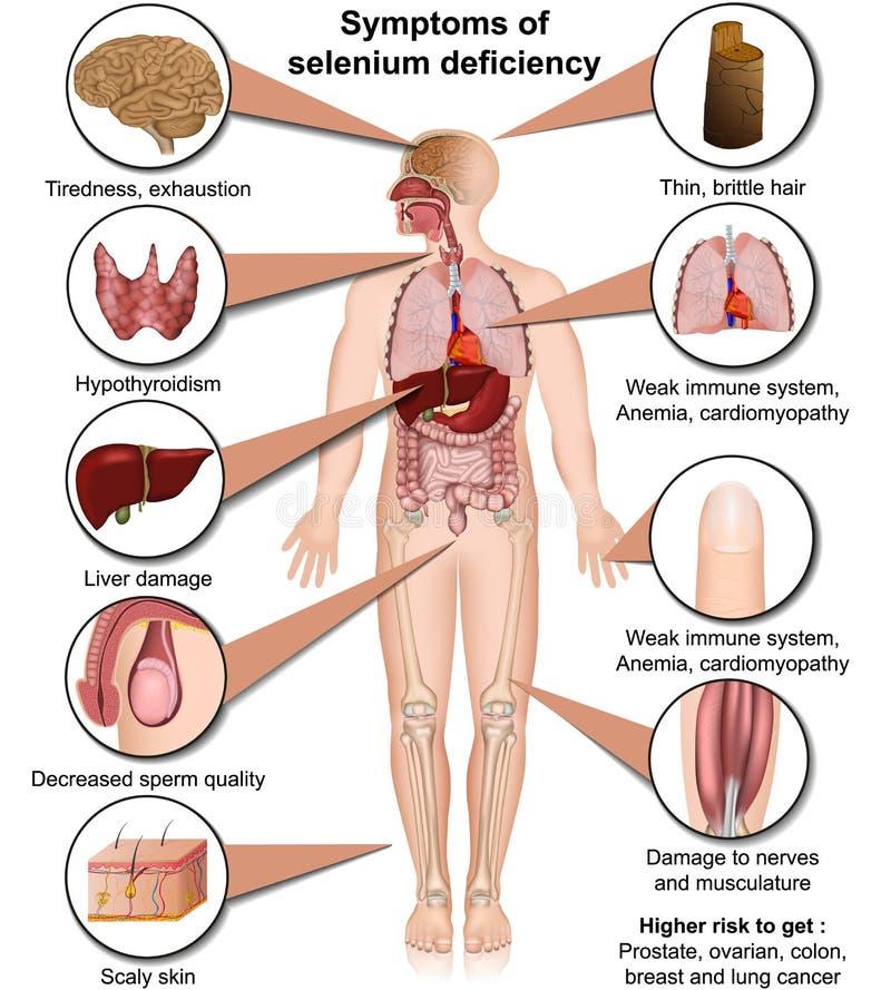 De medische vectordieillustratie van de seleniumdeficiëntie op witte infographic achtergrond wordt geïsoleerd royalty-vrije illustratie
