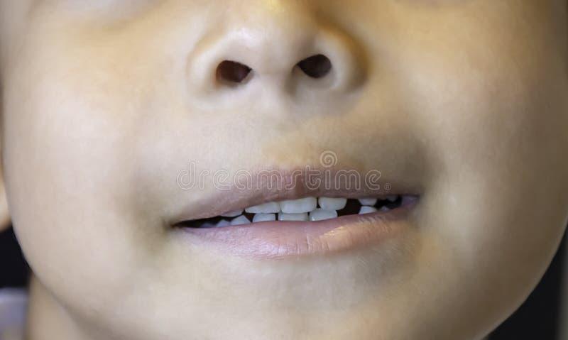 De melktanden worden enkel gelaten vallen in de mond stock foto