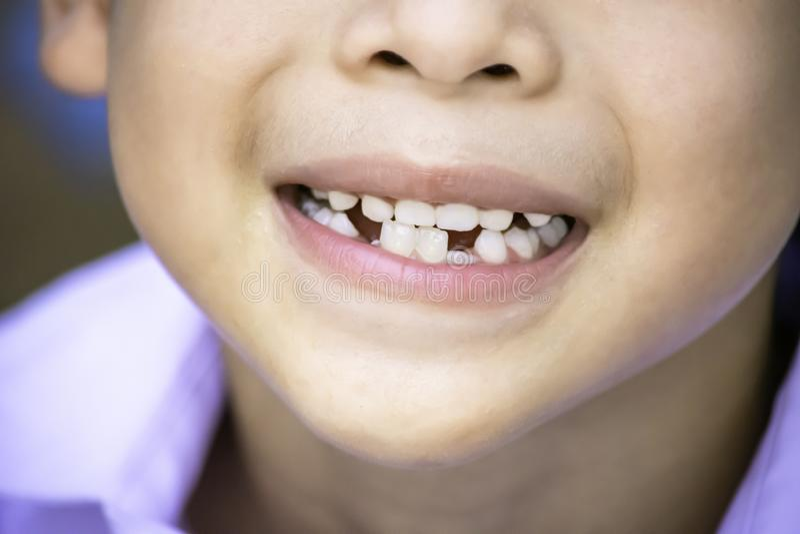 De melktanden worden enkel gelaten vallen in de mond en regenereren tand royalty-vrije stock foto's