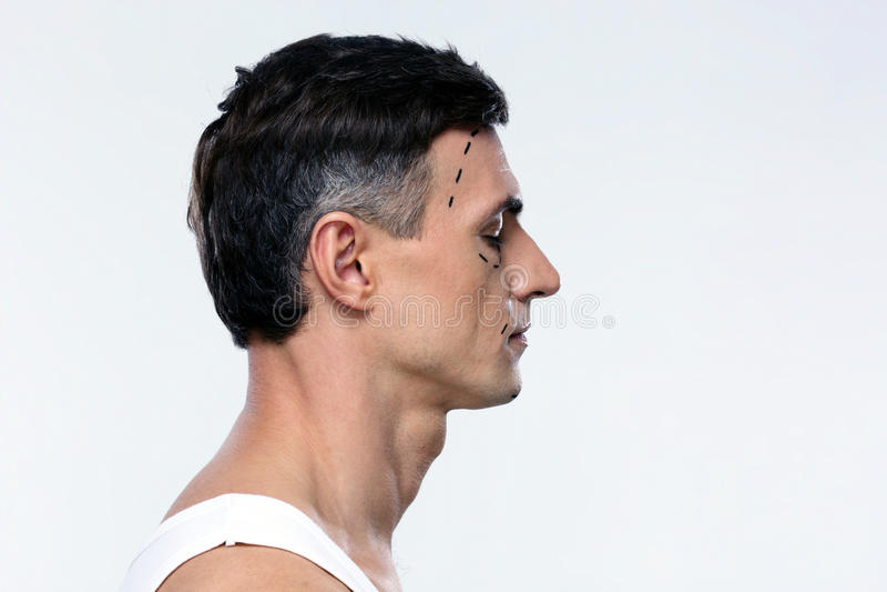 De mens merkte met lijnen voor plastische chirurgie stock fotografie