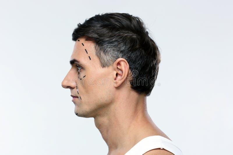 De mens merkte met lijnen voor plastische chirurgie royalty-vrije stock foto