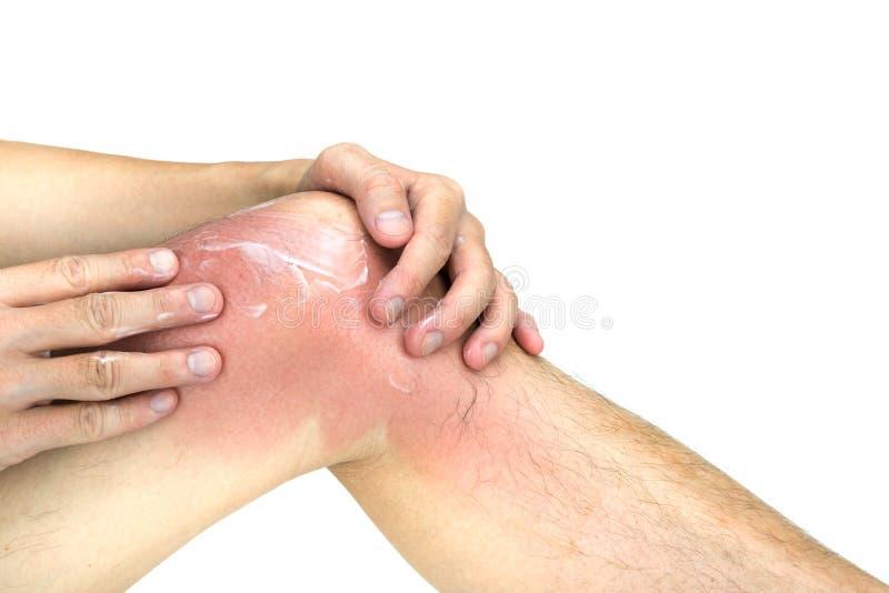 De mens past lotion op gebruinde kniehuid toe, op witte achtergrond royalty-vrije stock foto's