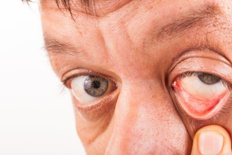 De mens trekt zijn lager ooglid met zijn neer vinger royalty-vrije stock fotografie