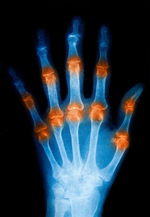 De mens van het röntgenstraalaftasten voor hand royalty-vrije stock foto's