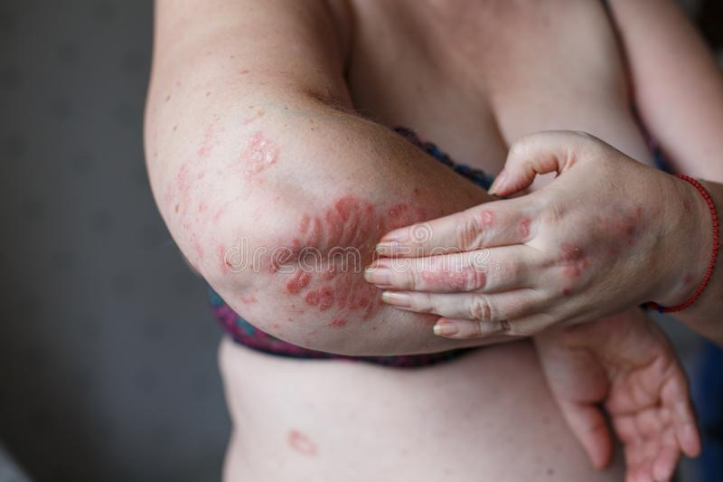 De mensen krassen de jeuk met hand, Wapen, het jeuken, Concept met Gezondheidszorg en Geneeskunde Eczema of psoriasis op hand royalty-vrije stock foto's