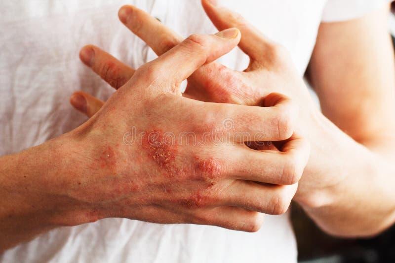 De mensenkras oneself, de droge vlokkige huid op hand met vulgaris psoriasis, het eczema en andere huid conditioneren als paddest royalty-vrije stock foto