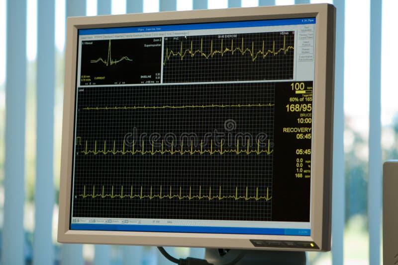 De monitor van het elektrocardiogram stock afbeelding