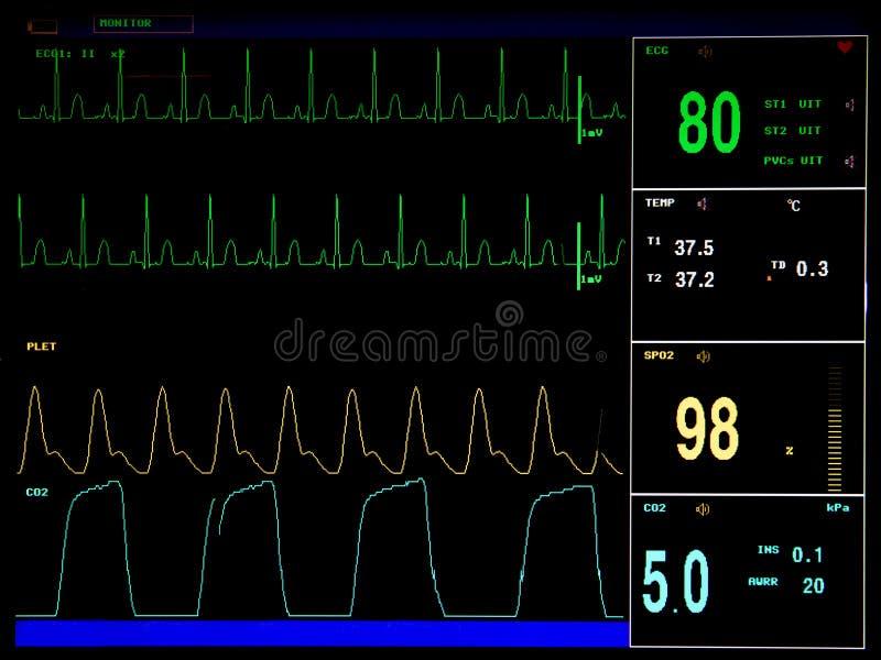 De monitor van het elektrocardiogramscherm stock foto
