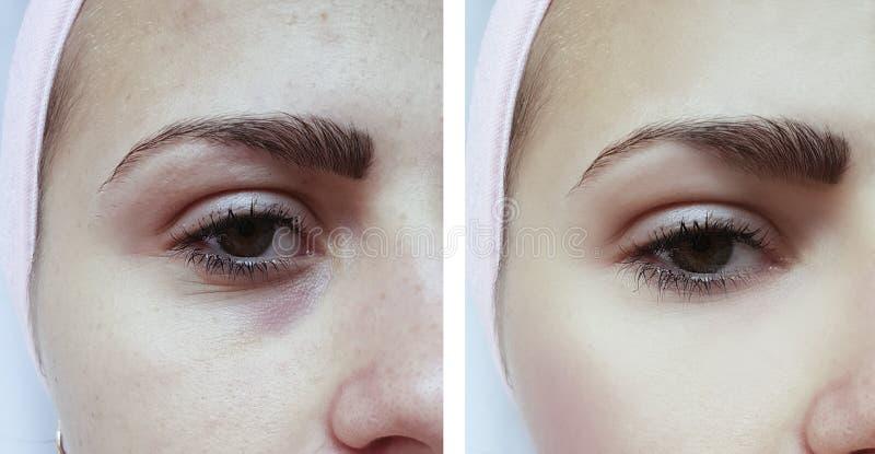 De mooie jonge patiënt van de meisjesacne, kneuzingen onder de therapie van de ogenverwijdering before and after procedures stock foto