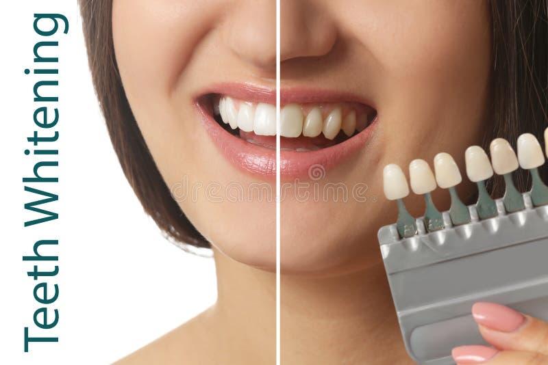 De mooie jonge vrouw met tanden kleurt steekproeven op witte achtergrond royalty-vrije stock foto