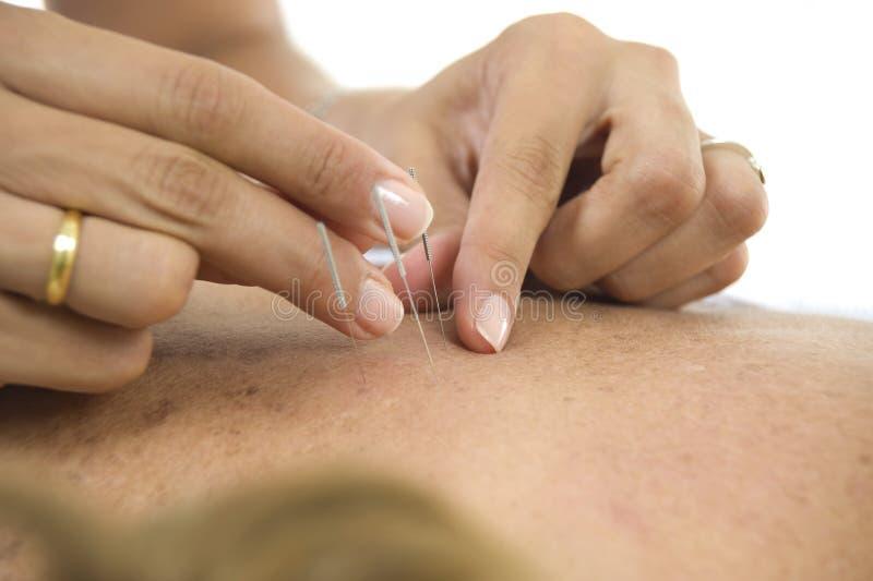 De Naalden van de acupunctuur in ruggen royalty-vrije stock afbeeldingen