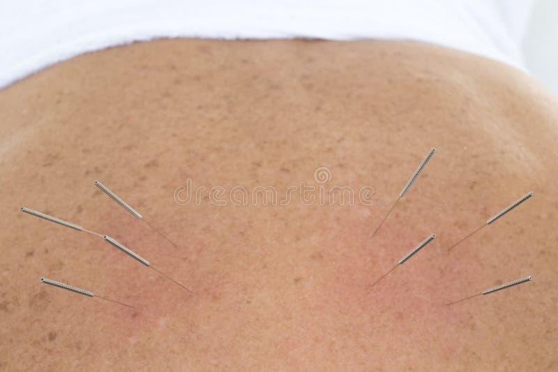 De Naalden van de acupunctuur in ruggen stock foto