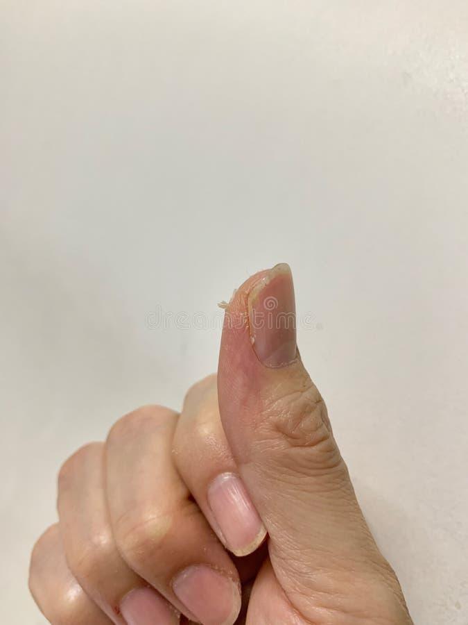 De nadruk op de handen en vingershuid pelt, Pellend epidermis, Ruwe droge huid, ontstekingshuidziekten op witte achtergrond royalty-vrije stock foto's