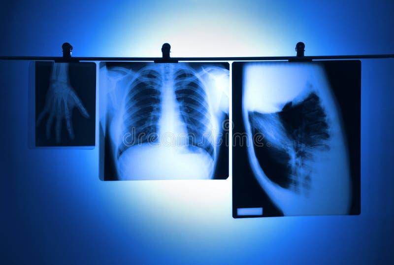 De negatieven van de longröntgenstraal royalty-vrije stock foto