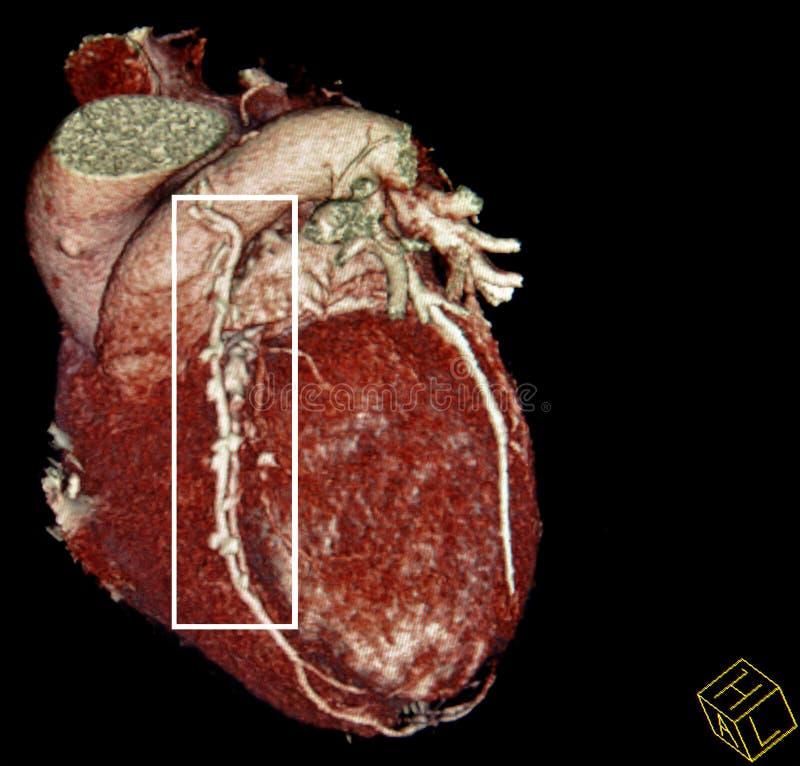De omleidingschirurgie van het hart. CT-aftasten wederopbouw stock afbeeldingen