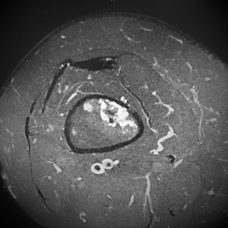 De oncologiesarcoom van het Mri dijbeen stock foto