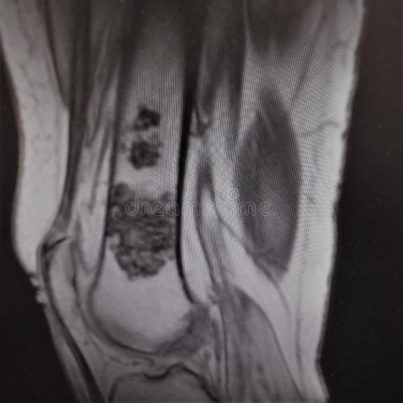 De oncologiesarcoom van het Mri dijbeen royalty-vrije stock fotografie
