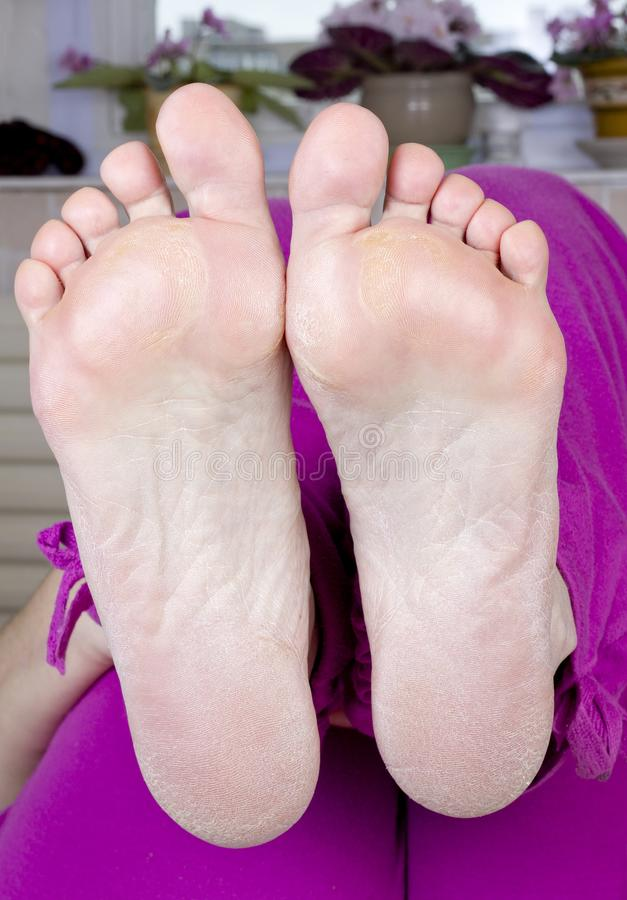 De onderkant van de voet van een oud bejaarde met calluses stock foto's