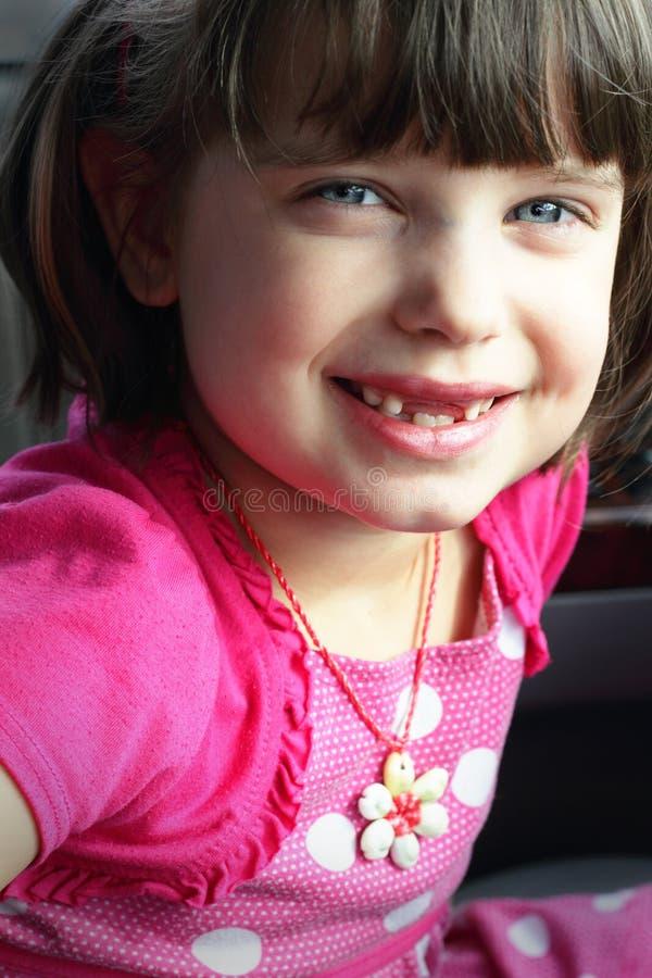 De ontbrekende Glimlach van Tanden royalty-vrije stock fotografie