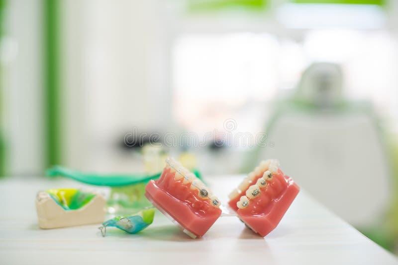 De orthodontische tanden modelleert tandonderwijs modelkaken met de halve ceramische en halve Tanden van de metaalsteun en Kaakmo stock afbeeldingen