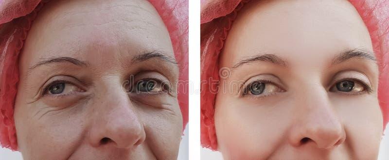 De patiënt van de het gezichtsverwijdering van vrouwenrimpels before and after de behandelingenkosmetiek stock afbeeldingen
