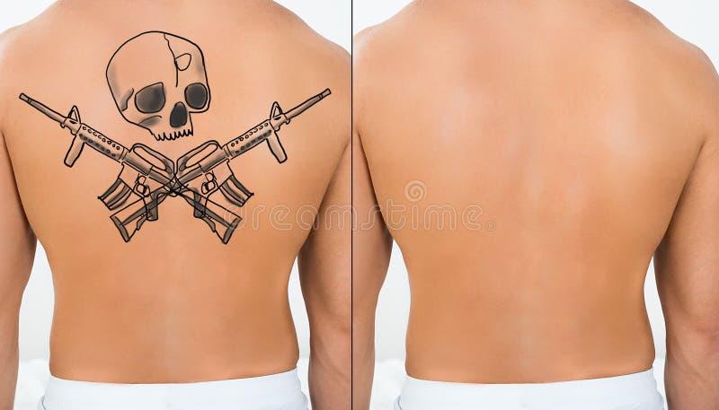 De Person Showing Laser Tattoo Removal del tratamiento parte posterior encendido imagenes de archivo