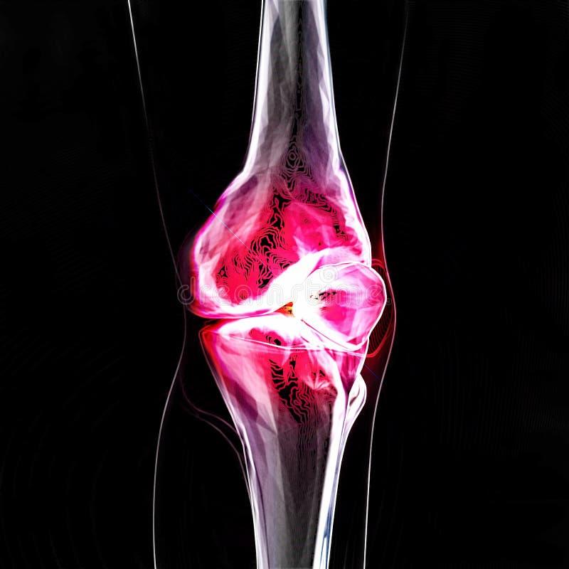 De pijn van de knie stock illustratie