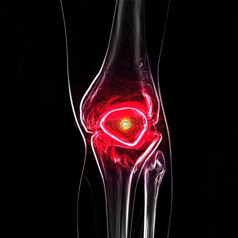 De pijn van de knie vector illustratie