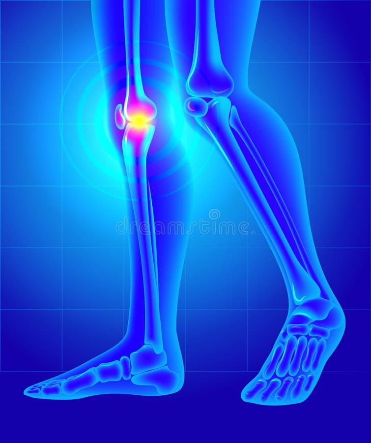 De Pijn van de knie Röntgenstraal van het skelet en de benen royalty-vrije illustratie