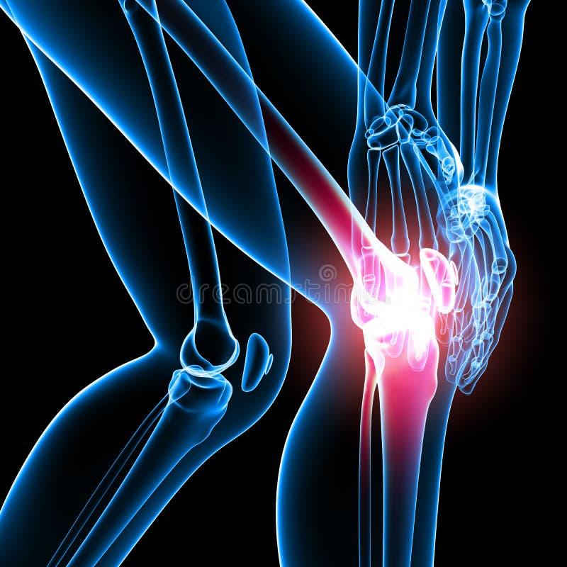 De pijn van de knie van juist beenskelet vector illustratie