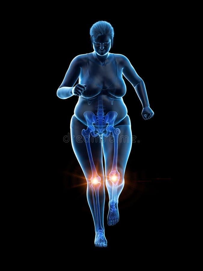 De pijnlijke knieën van een te zware vrouw royalty-vrije illustratie