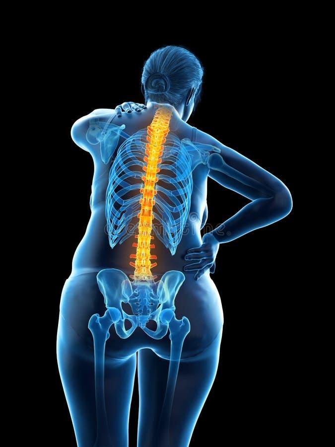 De pijnlijke rug van een te zware vrouw stock illustratie