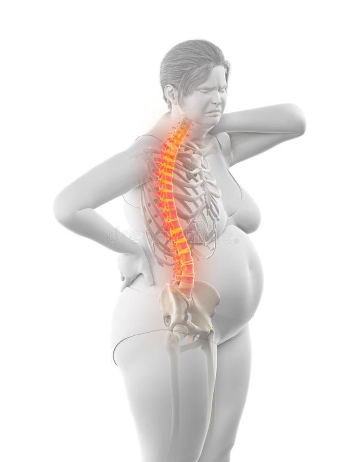 De pijnlijke rug van een te zware vrouw vector illustratie