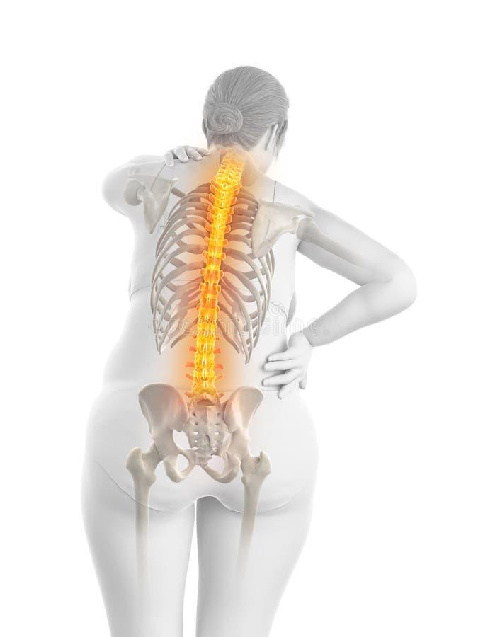 De pijnlijke rug van een te zware vrouw royalty-vrije illustratie